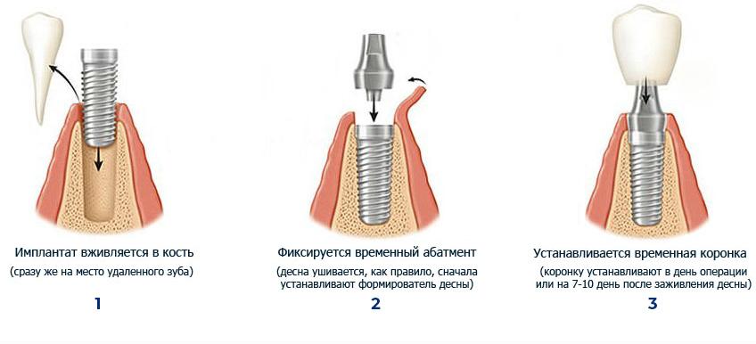 Имплантация Сургут